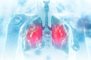 Chronické pľúcne chlamýdie (Chlamydophila pneumoniae)